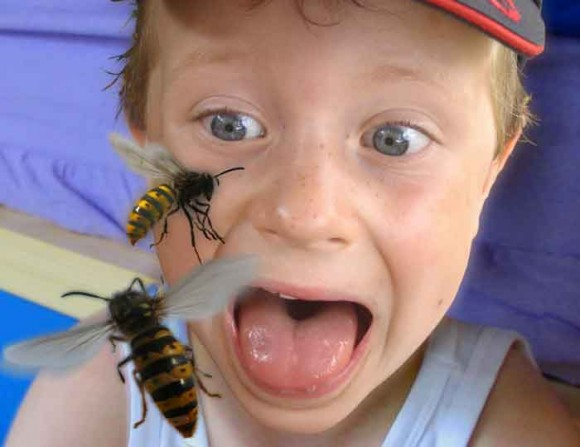 Boy attacked by wasps picture by Mick Robertson